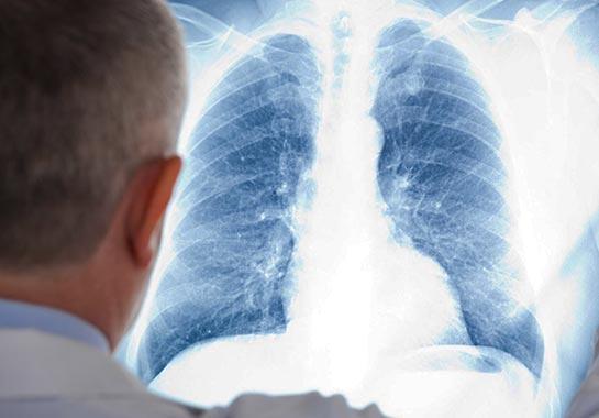 Médico olhando para radiografia do pulmão - Clínica do Pulmão