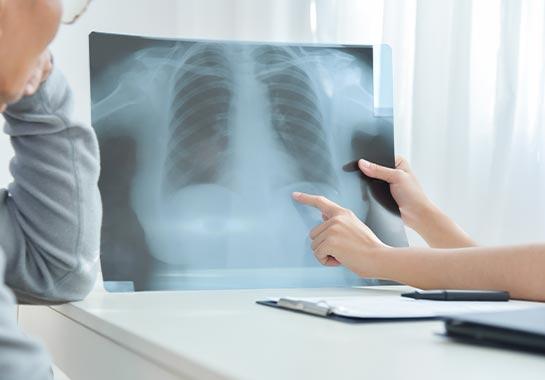 Médico mostrando radiografia do pulmão ao paciente - Clínica do Pulmão